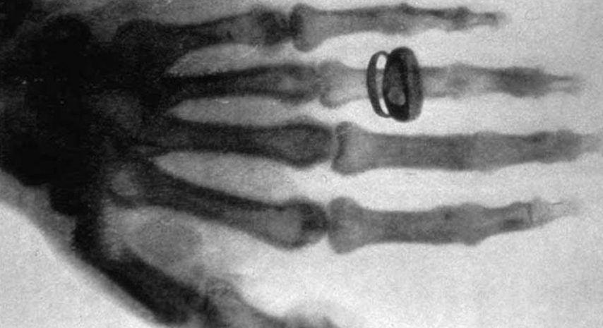 Historia de la primera radiografía