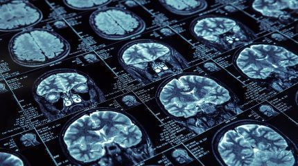 Alzheimer's disease: Patients benefit from nuclear imaging