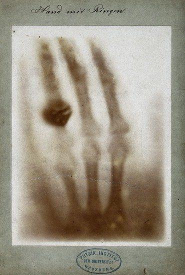 Radiografía de los huesos de la mano de Willem Röntgen, con un aro de plomo