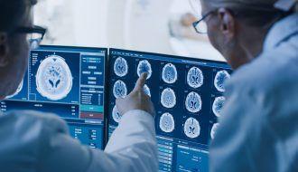 Guía para ayudar a países a decidir los mejores equipos de radioterapia contra el cáncer